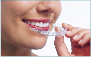 ClearAligners