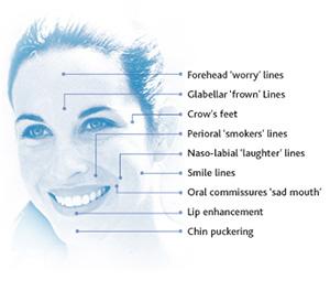 facial-line-softening
