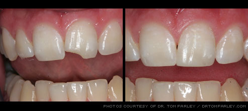 Chipped tooth fixed with cosmetic dentistry