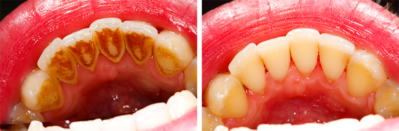 Before and after hygienist treatment